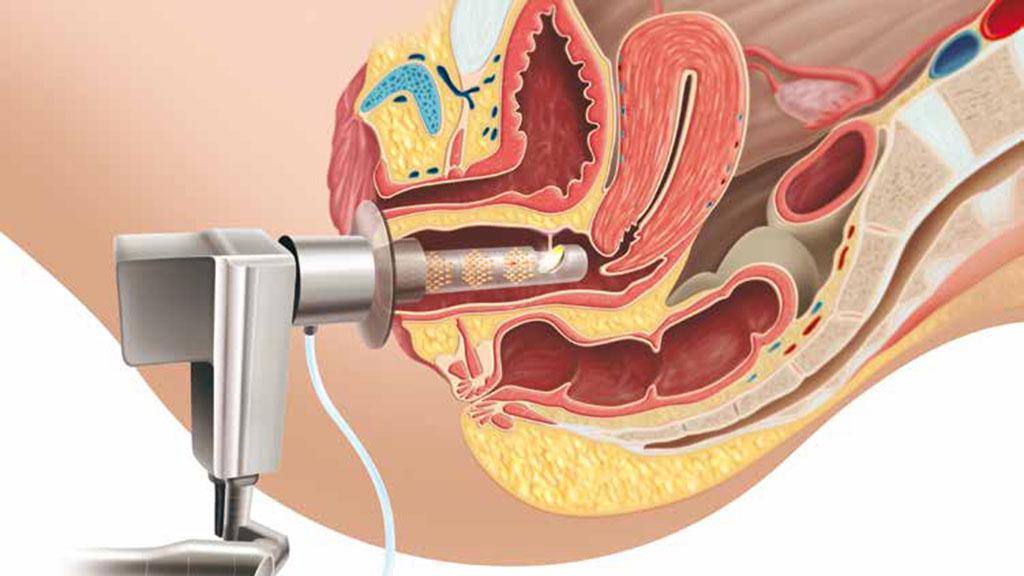 Accion-GYNELASE-en-mucosa-vaginal