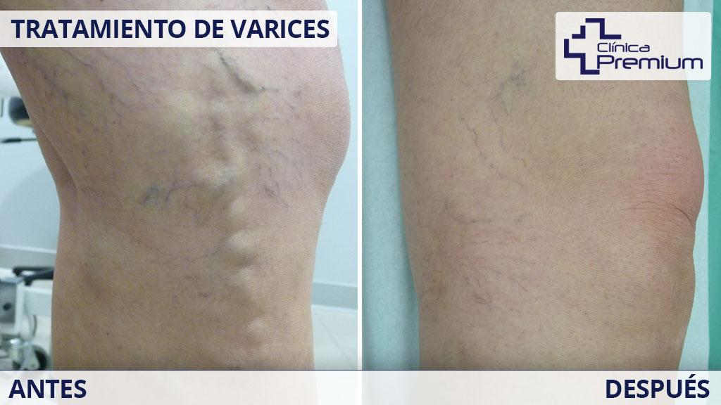 antes-despues-tratamiento-de-varices