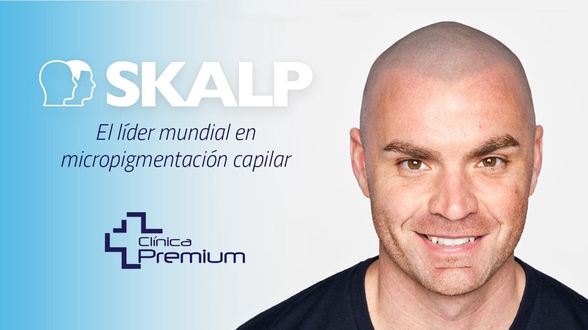 skalp-micropigmentacion-capilar-en-marbella